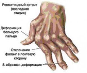 болезнь суставов рук, как лечить