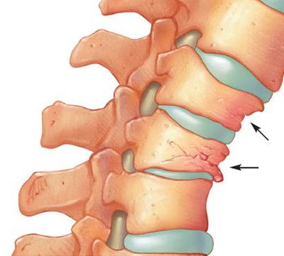 tratamentul eficient al artrozei articulare