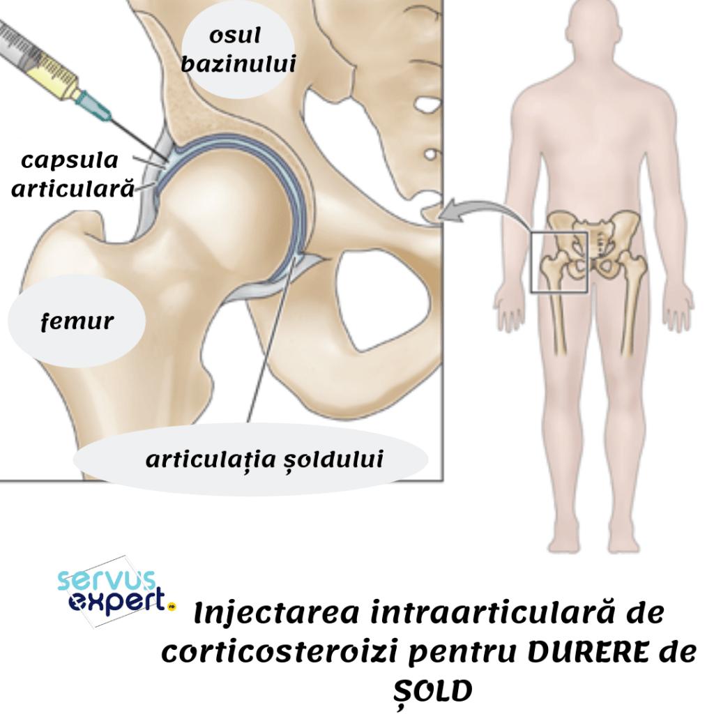 bursita durerii de șold tratamentul durerii la nivelul articulației sacroiliace