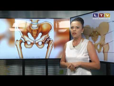 artrita acuta a articulatiei gleznei drepte