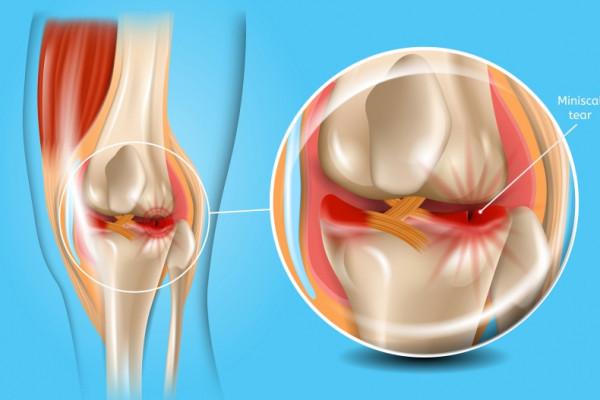 inflamația articulațiilor genunchiului