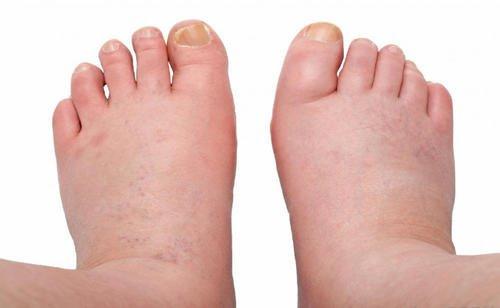 cauza picioare umflate umflarea articulației piciorului