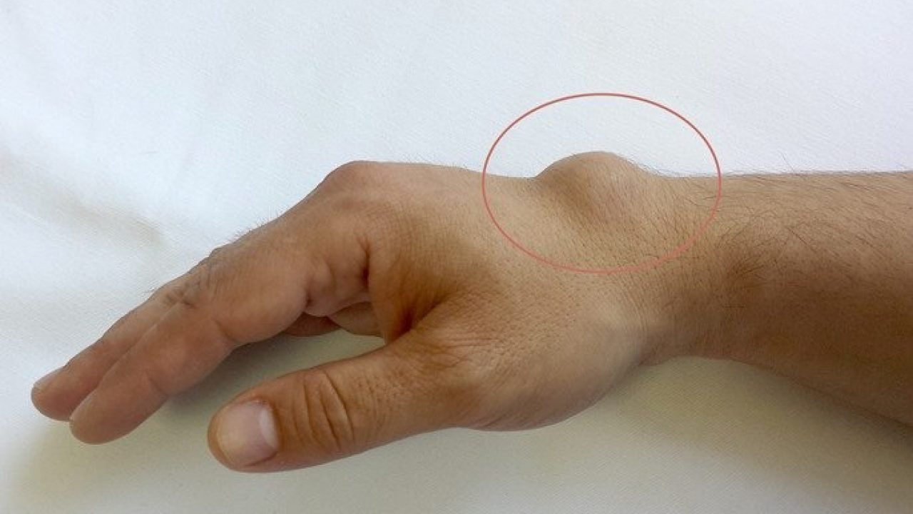 ce să faci doare articulația mâinii