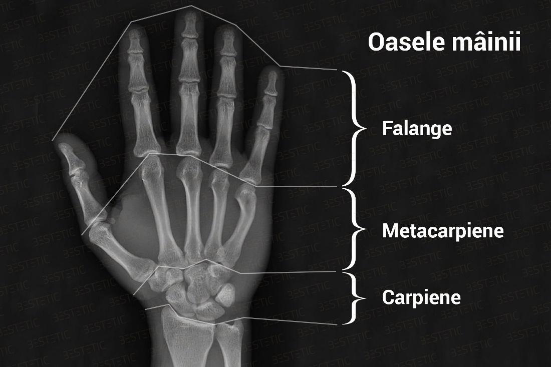 dureri mari ale degetelor