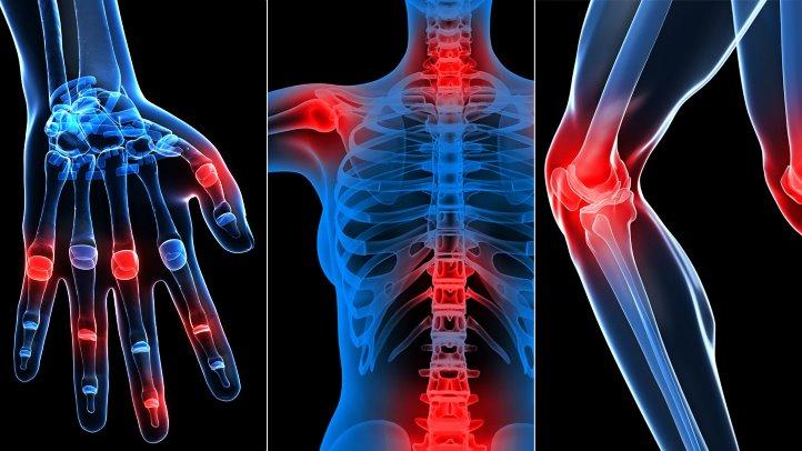 curs de tratament pentru artroza piciorului cum să tratezi articulațiile cu tinctură