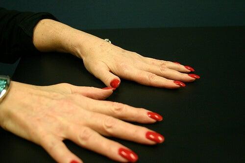 cum să tratezi artrita reumatoidă pe degete cum să alinați durerea severă în articulațiile genunchiului