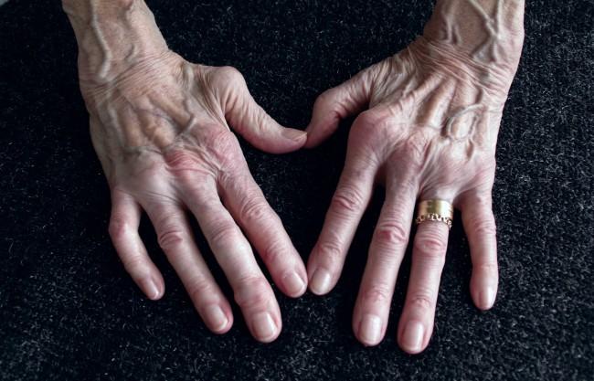 dureri la nivelul articulațiilor piciorului cu vene varicoase