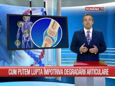 umflarea piciorului cu artrita articulației