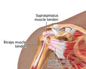 căderea articulației umărului rănit