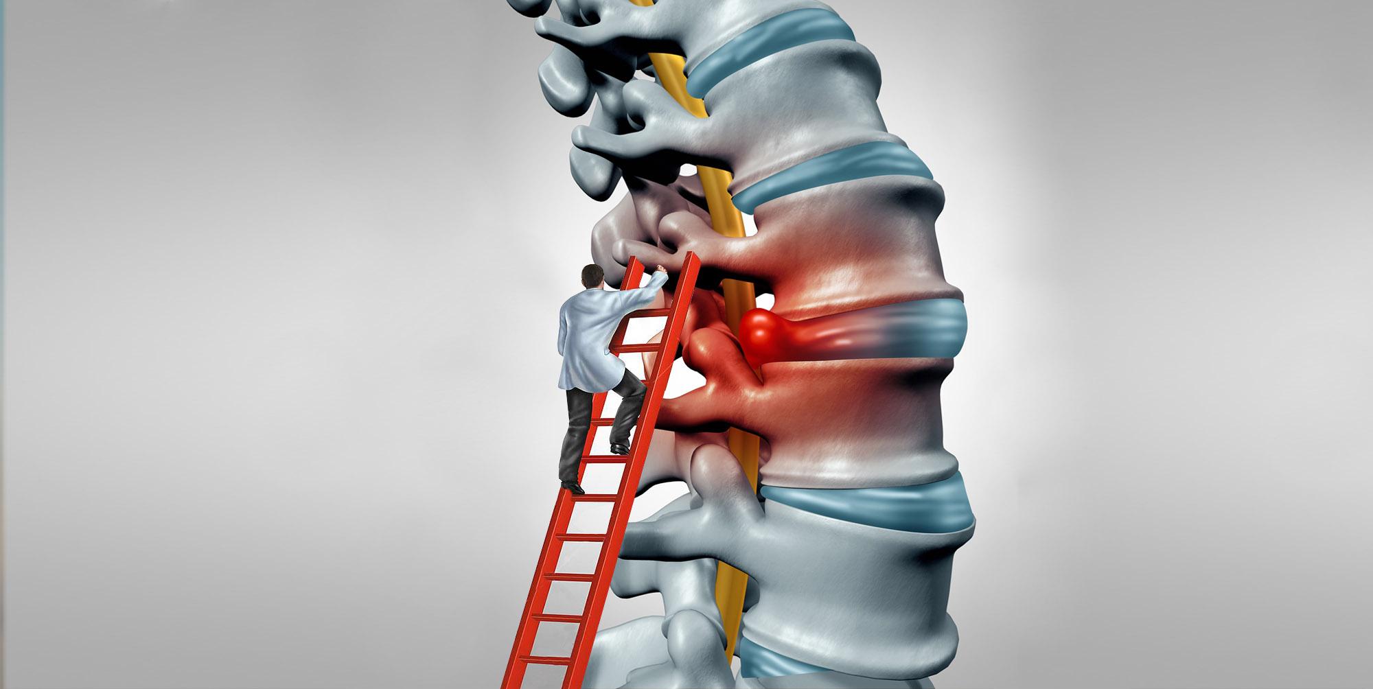 unguente pentru tratamentul artrozei degetului de la picior medicamente pentru dureri articulare în interior