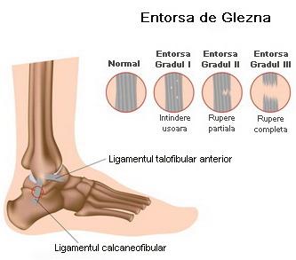durere severă în articulația gleznei antiinflamatoare pentru articulațiile de ultimă generație