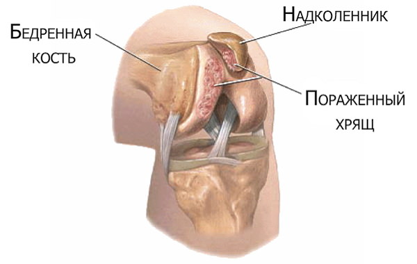 durere umar drept cauze