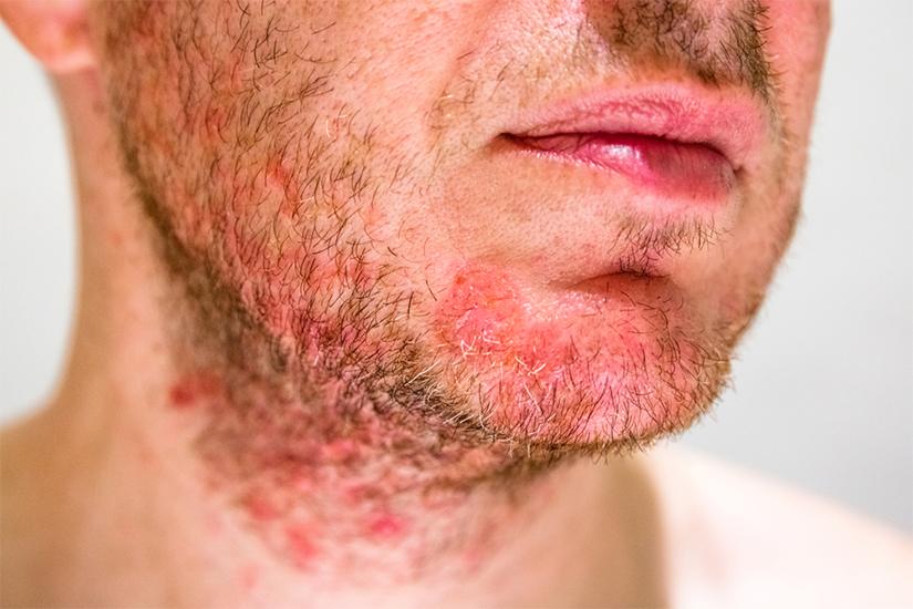 Scalp cu dermatită seboreică | studentscareer.ro
