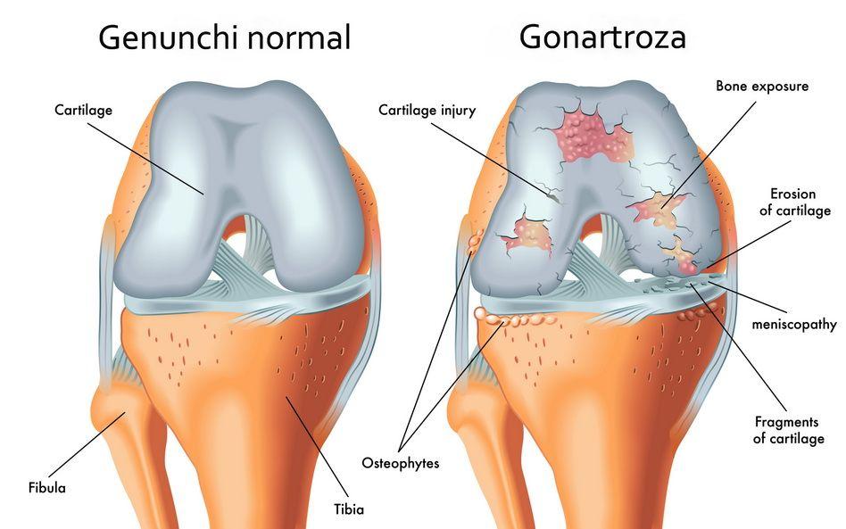 deteriorarea cartilajelor articulare ce spune durerea la sold