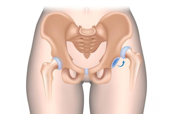 deteriorarea cartilajului șoldului medicamente pentru tratarea durerii în articulația gleznei