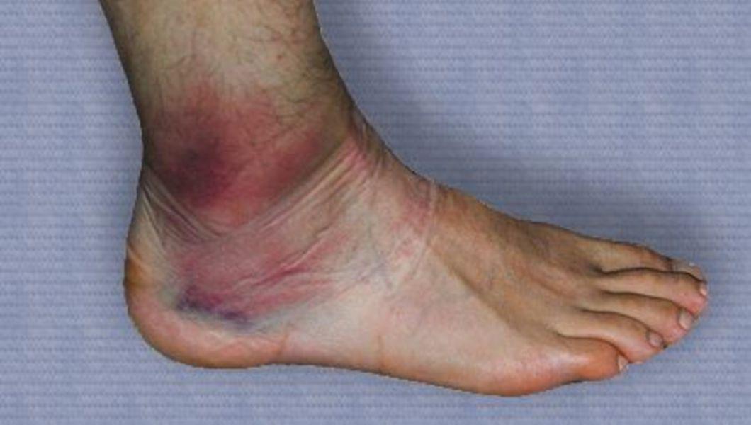 deteriorarea parțială a ligamentului gleznei dureri articulare în sport