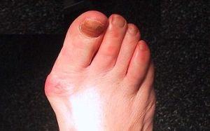 durere la gleznă și degetul mare