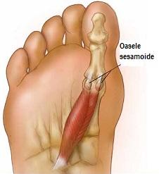 durere în articulația picioarelor după operație pentru anesteziere