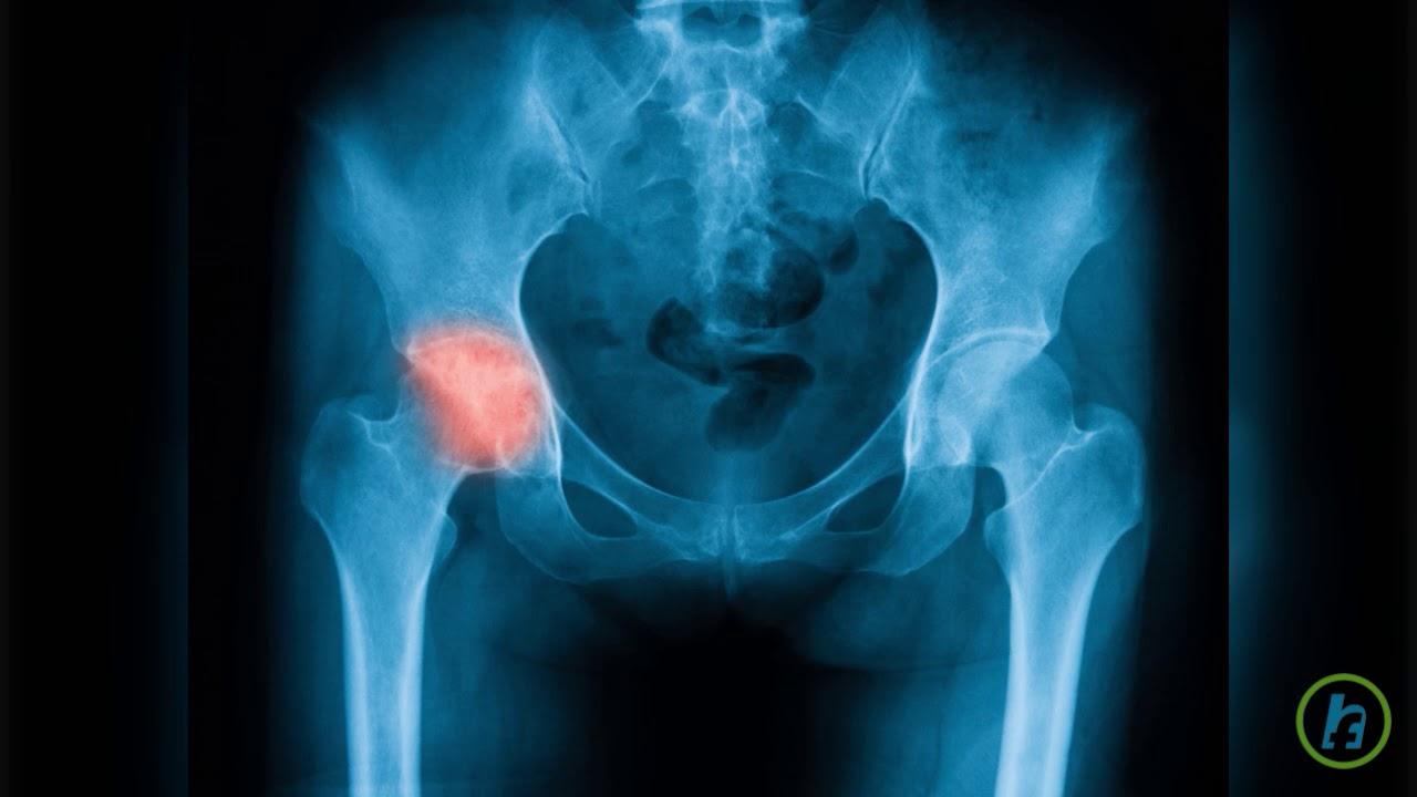unguent din articulații la genunchi unguent pentru vindecarea mușchilor și articulațiilor