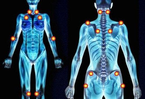 Fibromialgie – simptome, diagnostic si tratament