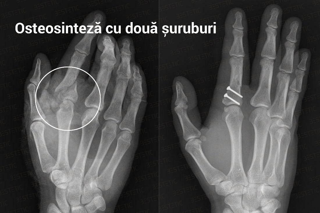dureri articulare după fracturarea mâinii boala articulațiilor genunchiului