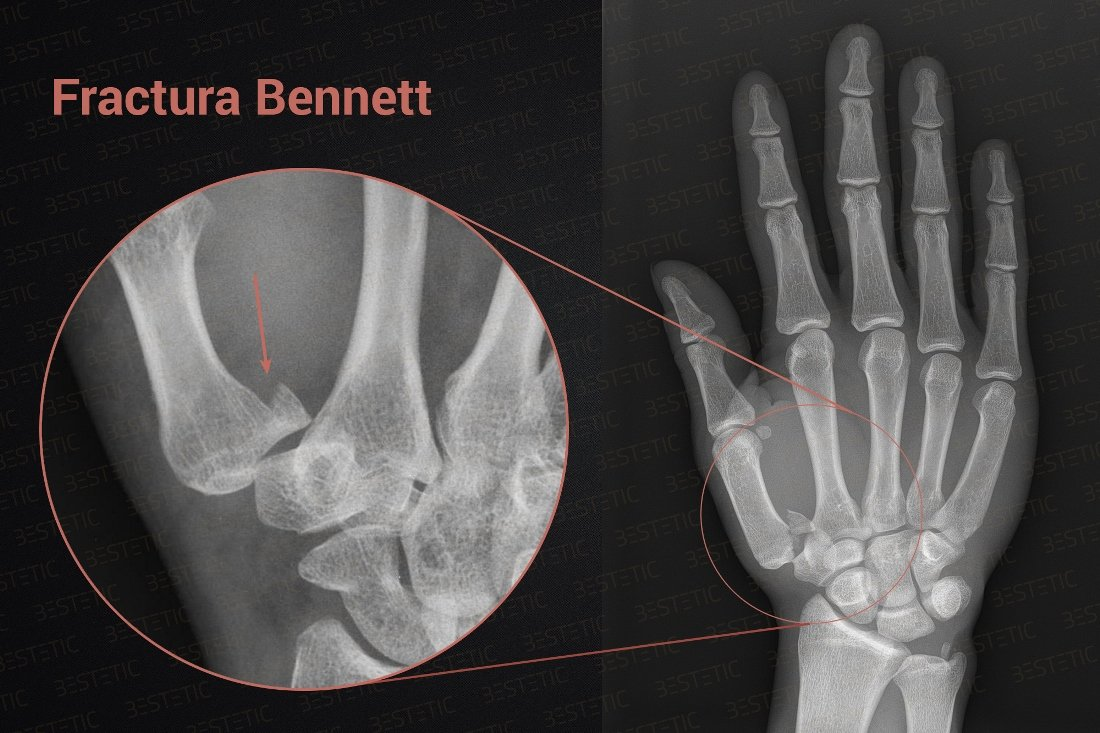dureri articulare după fracturarea mâinii tratamentul osteomielitei cronice a articulației șoldului
