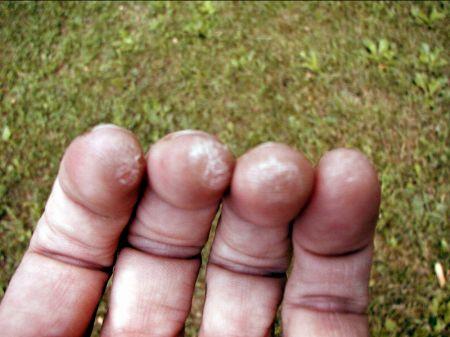 crunches unguent articulația genunchiului zahăr și boli ale articulațiilor