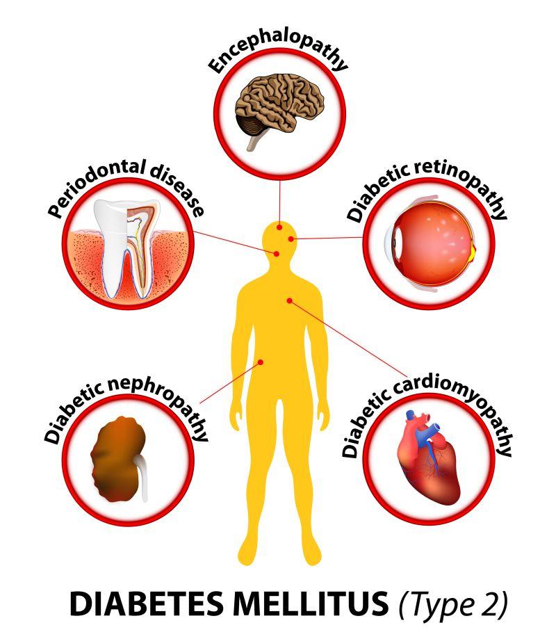 plasmolifting articular dureri osoase și articulare la nivelul piciorului