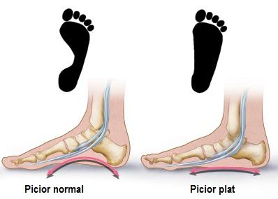 tratamentul artradolului la genunchi