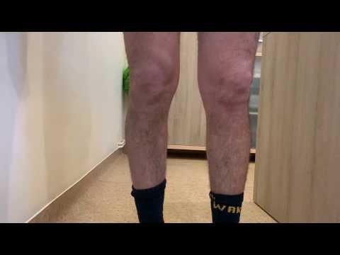 dureri de genunchi argilat durere în mușchii mâinilor și articulațiilor umărului