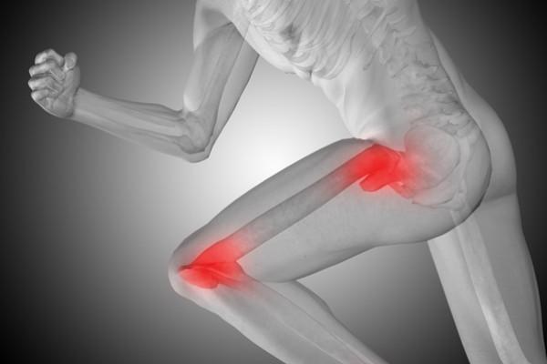 dureri de genunchi la șold