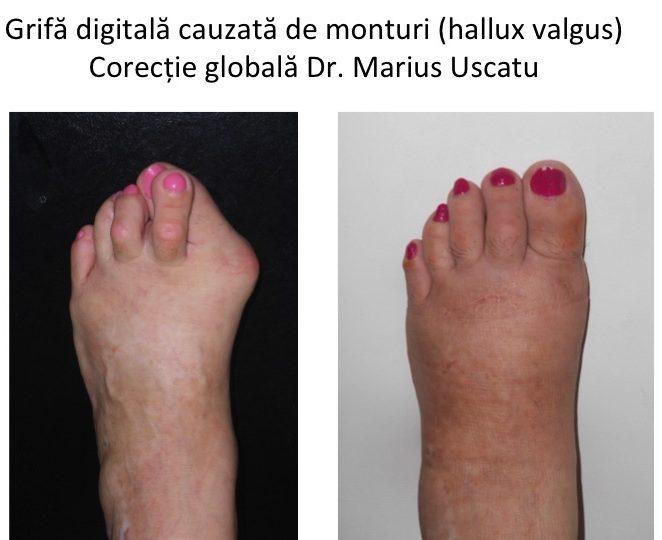 artrita falangelor degetelor de la picioare ce pot mânca cu artroza articulațiilor