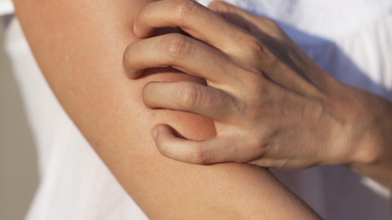 articulații mâncărime și umflături tratament clinic de etiologie artroză