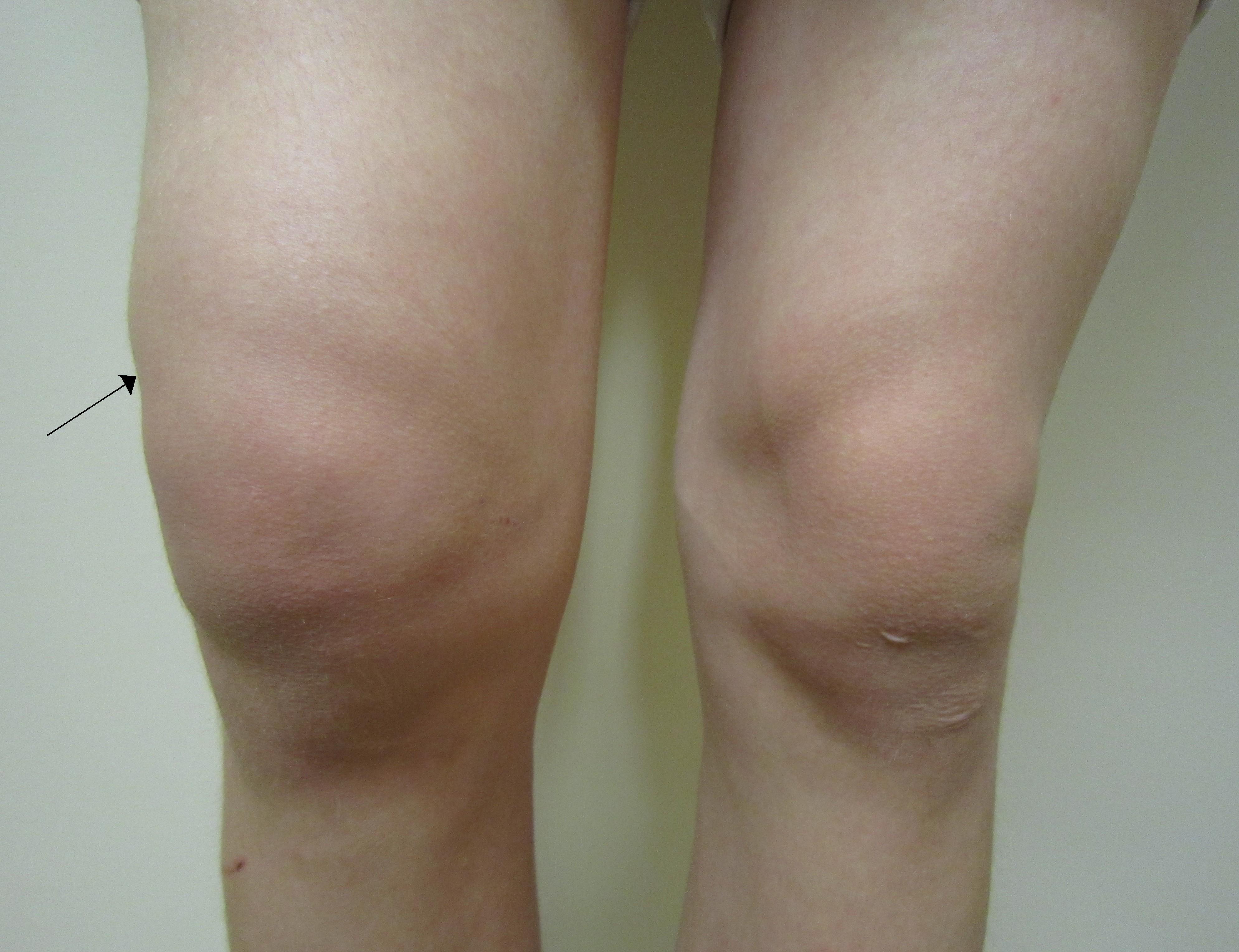 lichid în tratamentul bursitei genunchiului dureri de gleznă decât de tratat