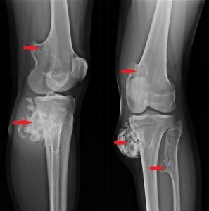 tratamentul injecțiilor articulare de artroză antiinflamatoare pentru articulațiile nimesulide