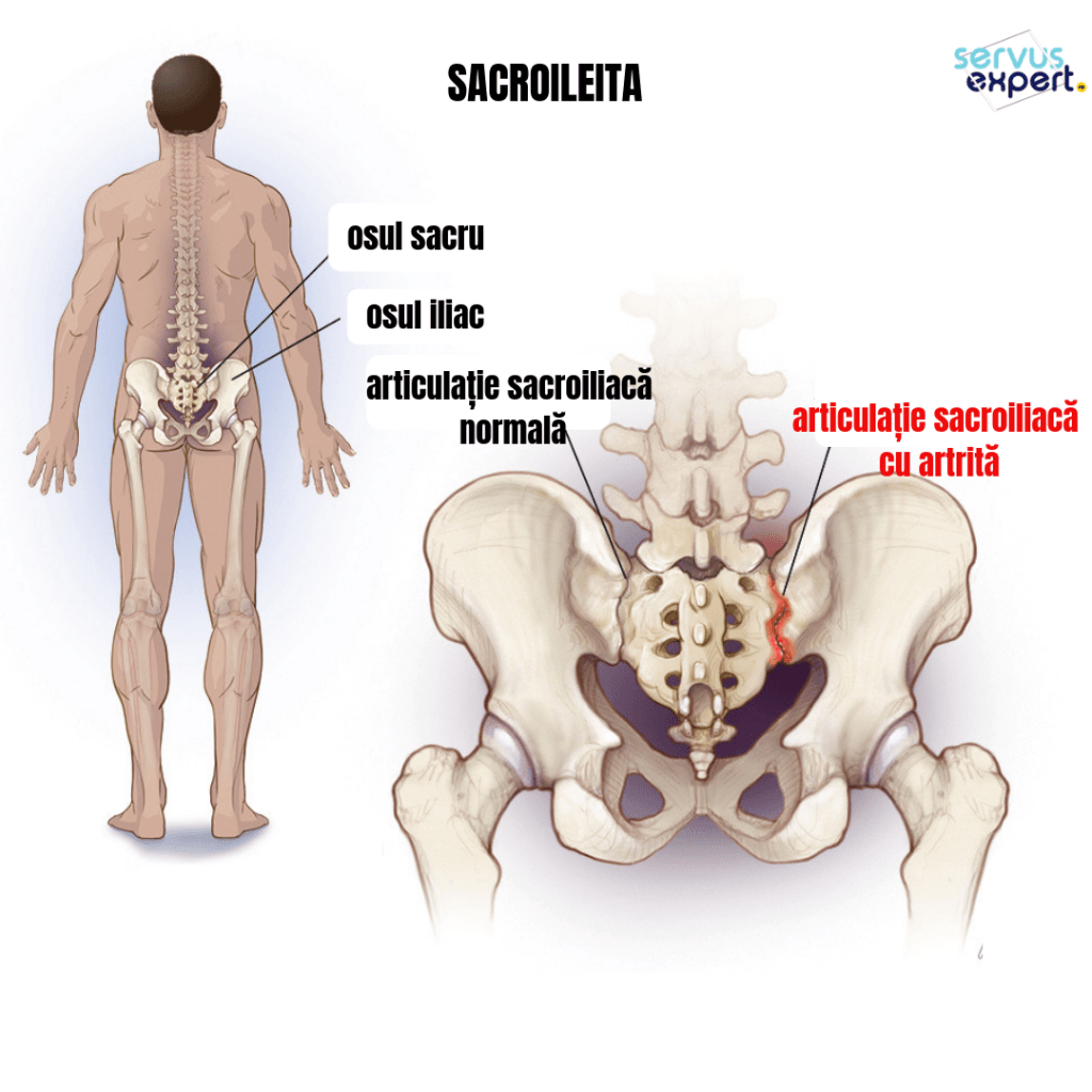 durere în articulația iliacă