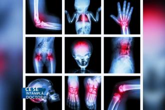 hemartroza genunchiului în caz de tratament cu leziuni Lyoton pentru inflamarea articulațiilor