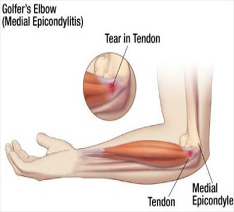 dureri de șold la o persoană în vârstă unguent pentru durere în articulațiile brațelor și picioarelor