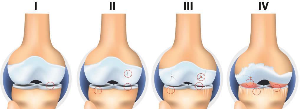 crește pe mâini cu artrită articulațiile pe degete și genunchi doare
