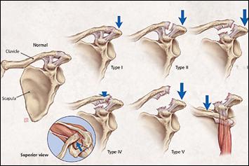 artrite sau semne de artroză pe mâini tratament comun cu uleiuri vindecătoare
