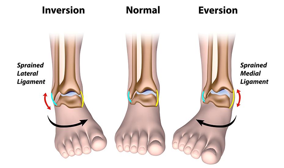 salcia vindecă articulațiile deteriorarea gleznei piciorului stâng