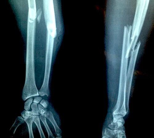 afectarea cronică a ligamentului lateral intern al genunchiului dureri de genunchi blocaj