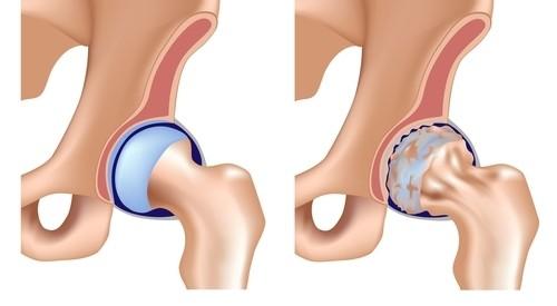 medicament pentru coxartroza articulației șoldului sprijin și tratament al articulațiilor