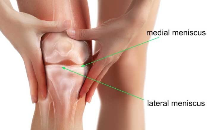 artroza reumatoidă a articulației gleznei inflamația articulației umărului și tratamentul acesteia