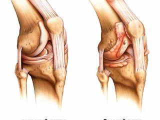 pentru a restabili genunchiul frisoane tuse dureri articulare