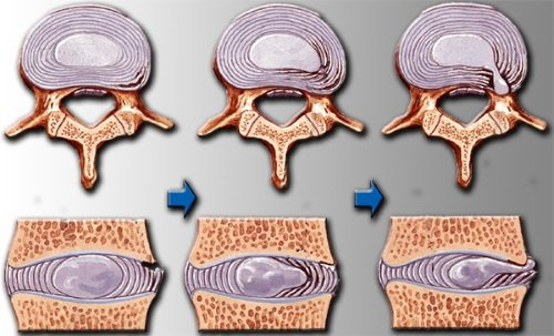 osteochondroza durerii cervicale a articulațiilor cotului artrita semnelor articulare ale umărului