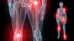 articulațiile umflate ale picioarelor tratament ortopedic pentru artroză