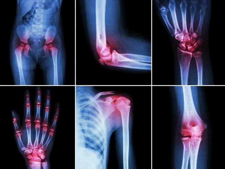 radiografia artritei genunchiului dureri articulare și tahicardie