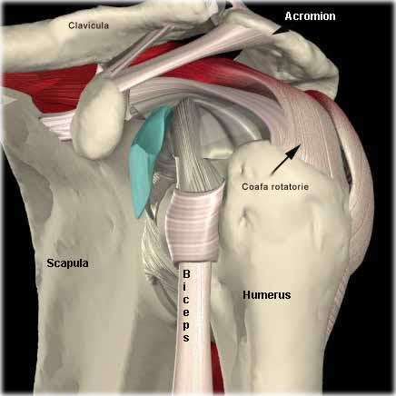 dureri de umăr cu osteochondroză