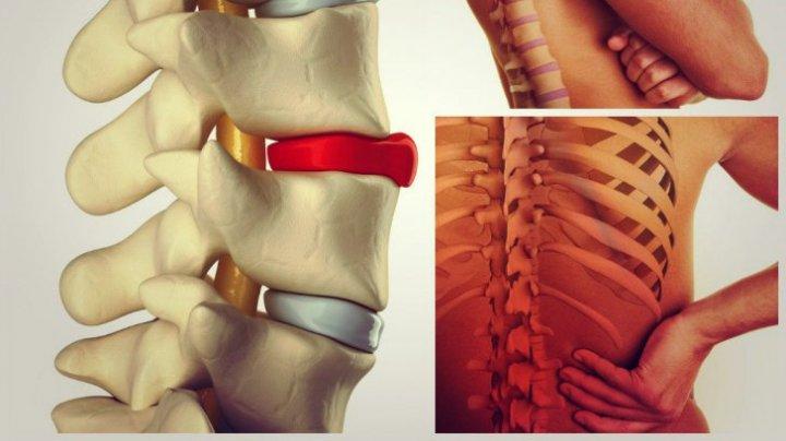 prepararea articulațiilor argo este tratabil pentru artroză